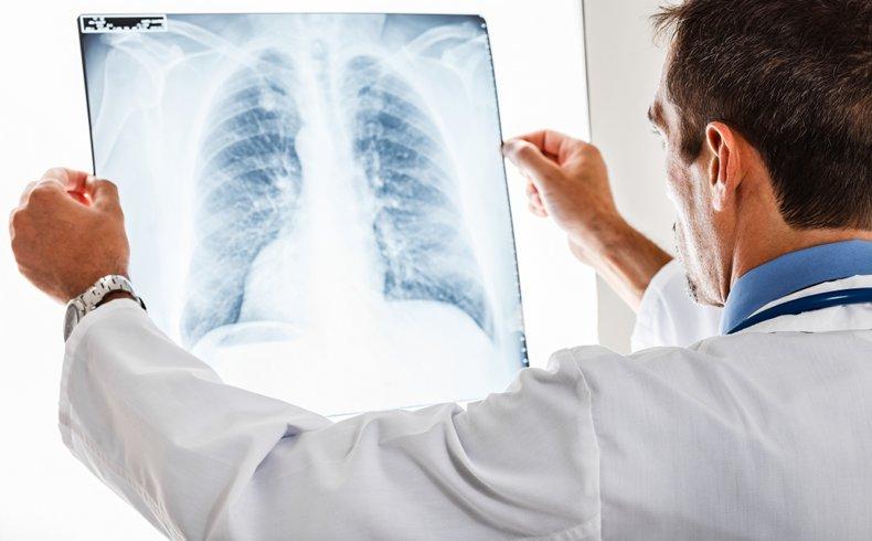 Tratamiento personalizado prologa la vida a pacientes con cáncer de pulmón